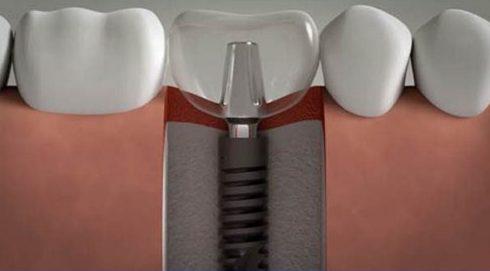 Khuyết điểm lớn nhất của răng giả tháo lắp 3