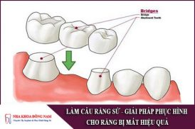 làm cầu răng sứ - giải pháp phục hình răng đã mất hiệu quả