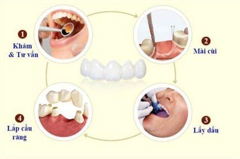làm cầu răng sứ - giải pháp phục hình răng đã mất hiệu quả 2