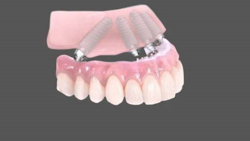 răng giả tháp lắp trên implant