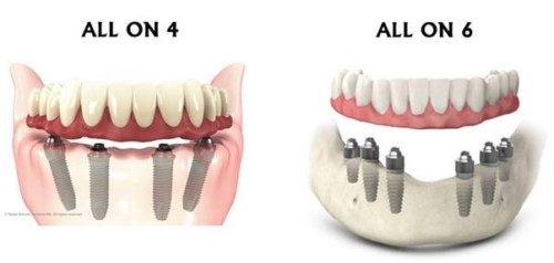 implant all on 4 và implant all on 6