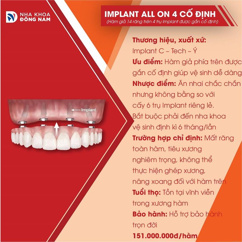 đặc điểm của implant all on 4 cố định