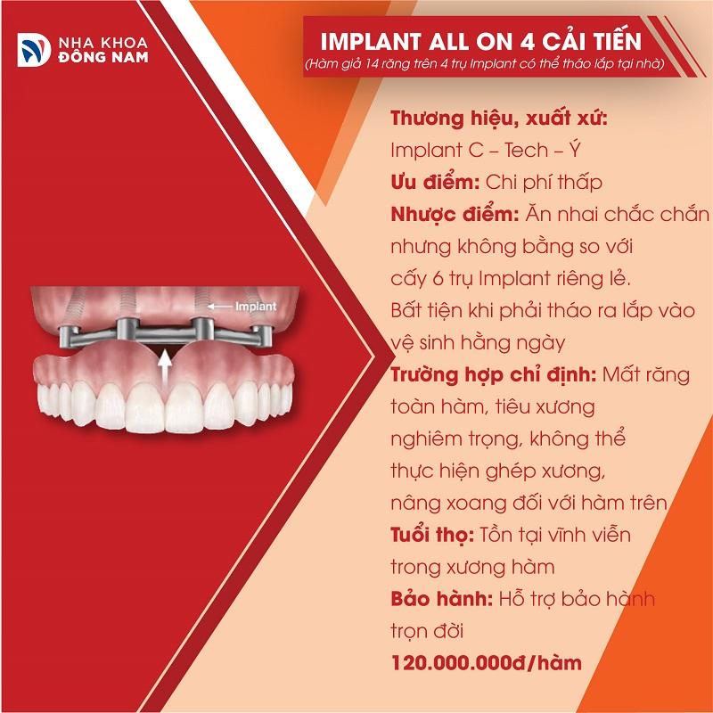 đặc điểm của implant all on 4 tháo lắp