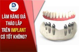Làm Răng Giả Tháo Lắp Trên Implant có tốt không?