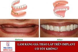 làm răng giả tháo lắp trên implant có tốt không