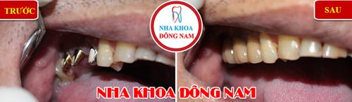 Mất răng nhai có nên trồng răng implant không-1