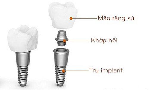 Mất răng nhai có nên trồng răng implant không-2