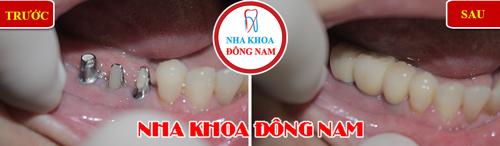 Mất răng nhai có nên trồng răng implant không-3