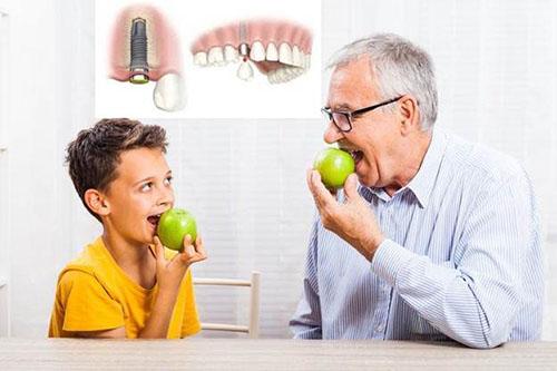 Mất răng nhai có nên trồng răng implant không-4