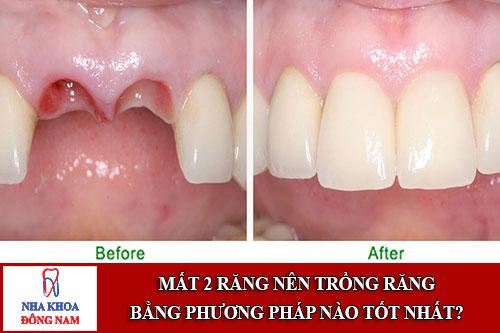 Phương pháp trồng răng nào tốt nhất khi bị mất 2 răng