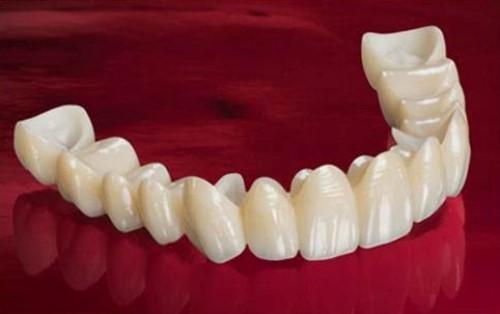trồng răng giả bằng cầu răng sứ