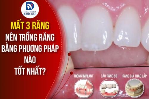 mất 3 răng nên trồng răng bằng phương pháp nào tốt nhất hiện nay