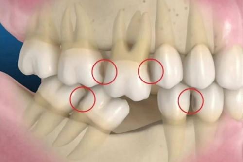 mất răng gây xáo trộn khớp cắn