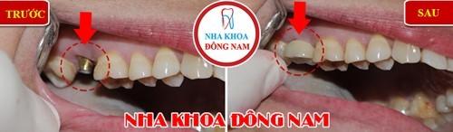 cấy 1 trụ implant răng hàm trên