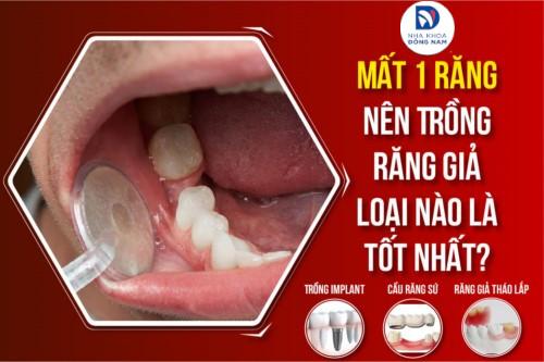 mất một răng nên trồng răng giả loại nào là tốt nhất