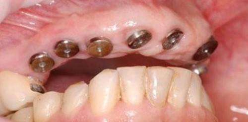 quy trình cấy implant