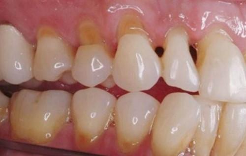 khuyết cổ răng