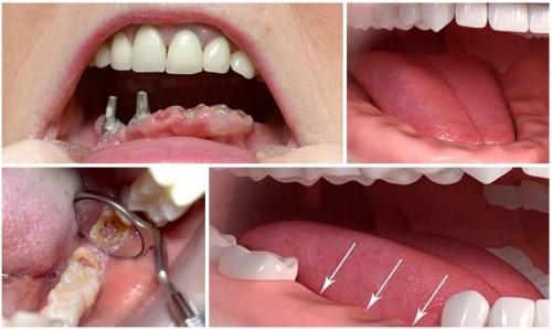 mất răng ảnh hưởng đến cuộc sống như thế nào 2