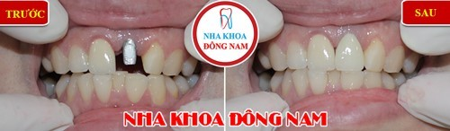 mất răng ảnh hưởng đến cuộc sống như thế nào 5