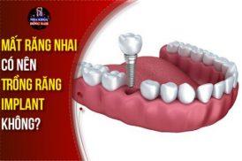 Mất Răng Nhai Có Nên Trồng Răng Implant Không?