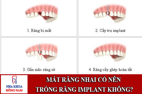 Mất răng nhai có nên trồng răng implant không