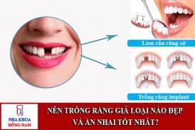 Nên trồng răng giả loại nào đẹp và ăn nhai tốt