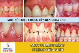nguy cơ rụng răng vì bệnh viêm nướu