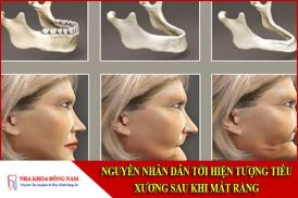 nguyên nhân dẫn tới hiện tượng tiêu xương sau khi mất răng