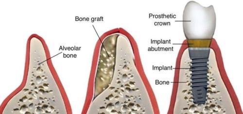 khắc phục tiêu xương hàm