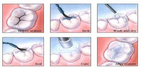 nha khoa trám răng ở đâu tốt nhất hiện nay 2
