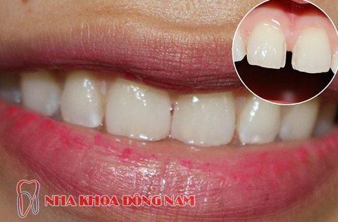 nha khoa trám răng ở đâu tốt nhất hiện nay 5