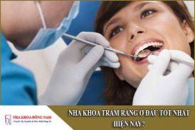 nha khoa trám răng ở đâu tốt nhất hiện nay
