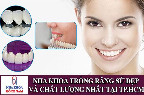 nha khoa trồng răng sứ đẹp và chất lượng nhất tại tp.hcm