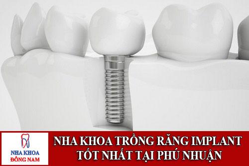 nha khoa trồng răng implant tốt nhất tại phú nhuận