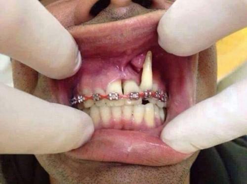 hâu quả của niềng răng sai kỹ thuật