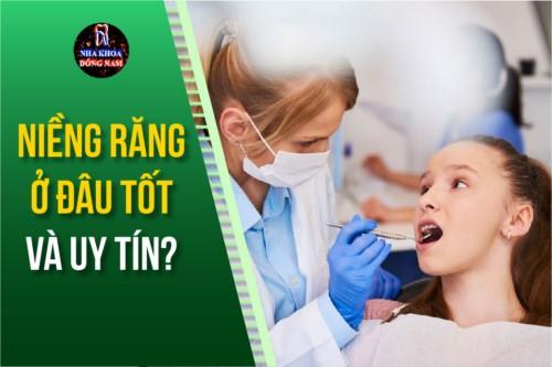 niềng răng ở đâu tốt và uy tín tại tphcm