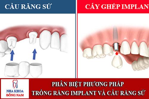 phân biệt phương pháp trồng răng implant và cầu răng sứ