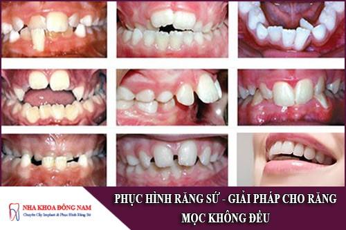 phục hình răng sứ giải pháp cho răng mọc không đều
