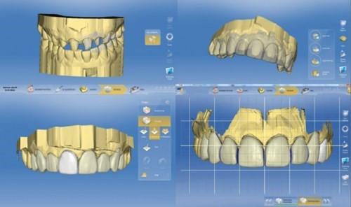 phục hình răng sứ giải pháp cho răng mọc không đều 1