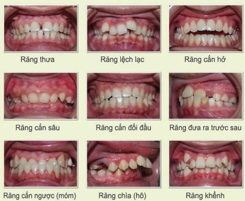 các trường hợp răng
