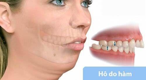 phục hình răng sứ giải pháp cho răng mọc không đều 5
