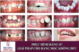 phục hình răng sứ - giải pháp cho răng mọc không đều