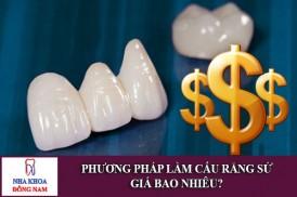 phương pháp làm cấu răng sứ giá bao nhiêu?