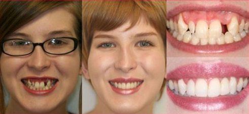 phương pháp trồng răng sứ bắt cầu là như thế nào 2