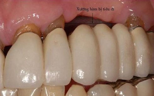 tình trạng tiêu xương do mất răng