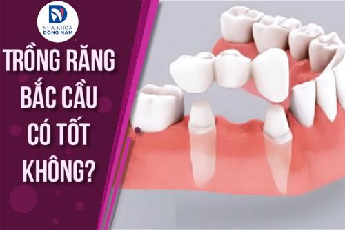 phương pháp trồng răng sứ bắt cầu là như thế nào 7