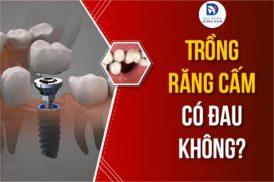 Phương pháp trồng răng cấm có đau không?