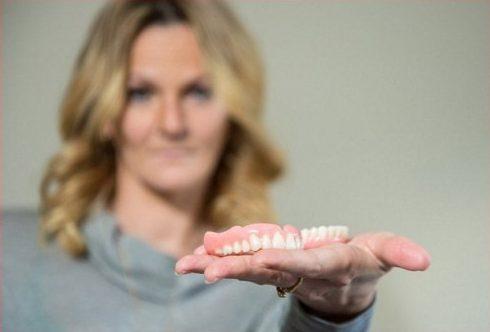 phương pháp trồng răng giả tháo lắp