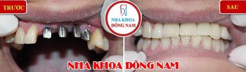 nên chọn phương pháp trồng răng giả nào tốt