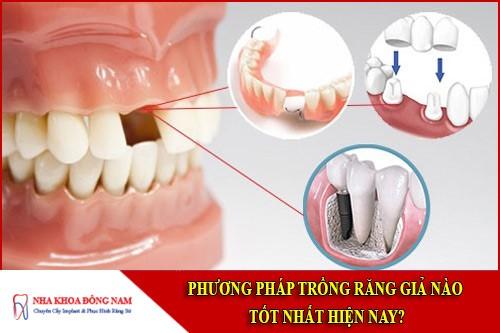 phương pháp trồng răng giả nào tốt nhất hiện nay